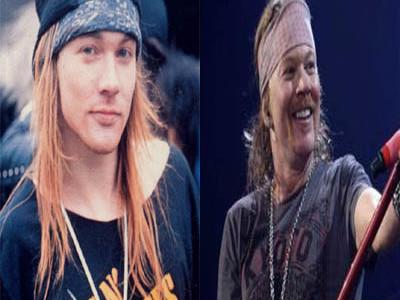 Axl Rose Antes e depois